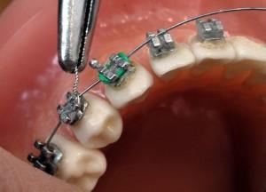 крепление брекетов на зубе
