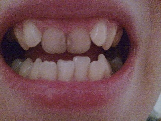 Знаменитости, которым кривые и проблемные зубы не мешают