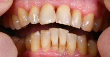 пародонтит зубов