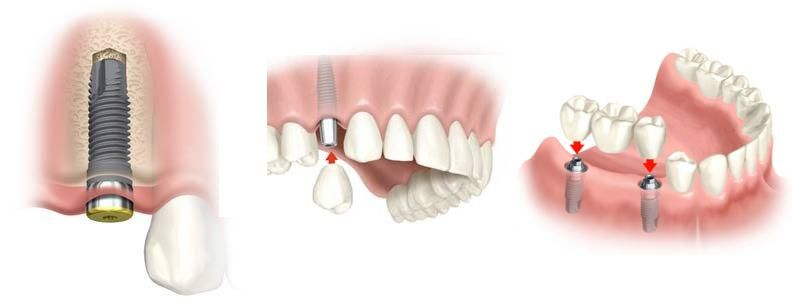процесс установки зубной коронки
