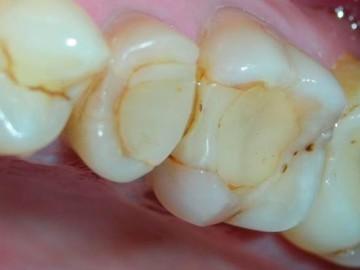 пломбировка каналов зуба