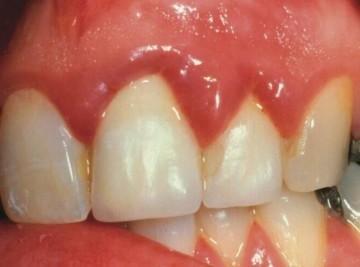 воспаление десны возле зуба
