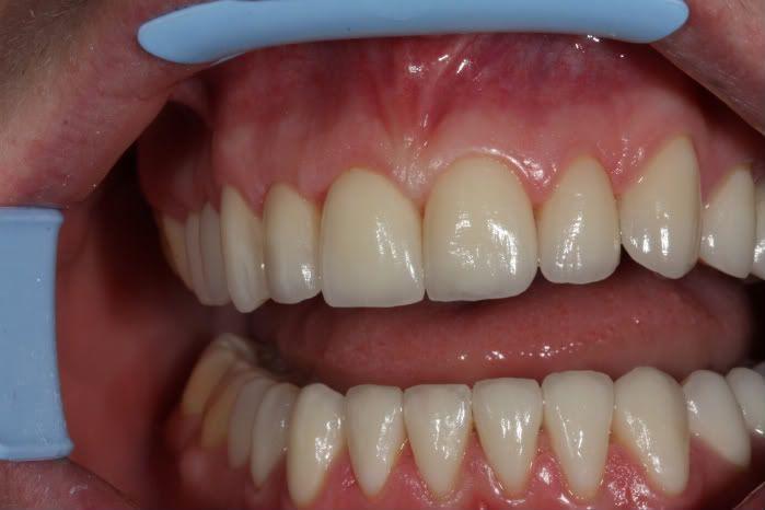 За сколько времени ставят коронки на зубы