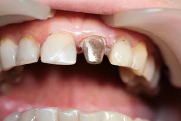 коронка на зубе