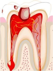 пульпит зуба как выглядит