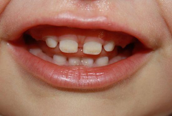 молочные зубы во рту