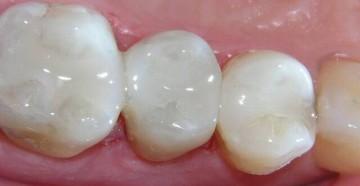 мышьяк в зубе