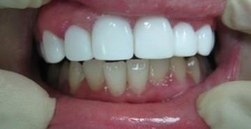 виниры на передних зубах