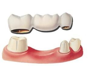 общий вид зубного моста