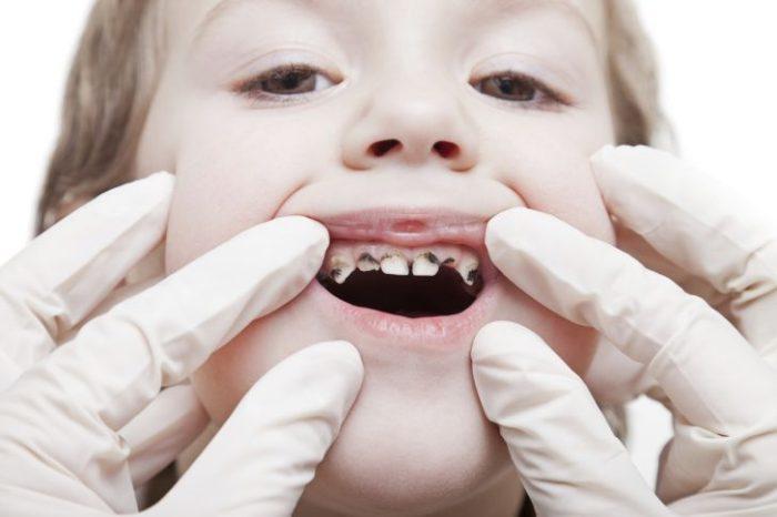 У ребёнка в 2 года гниют зубы